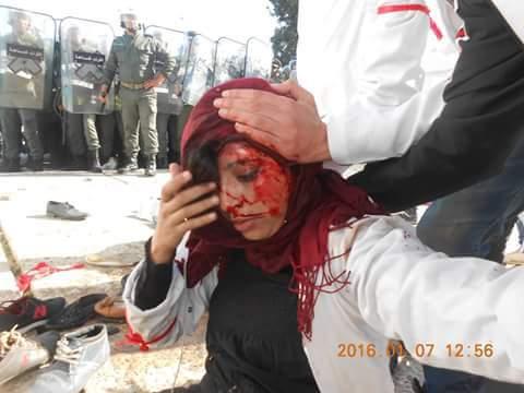 وزارة الداخلية تقول:إصابات خفيفة في صفوف الاساتذة المتدربين بعد تحديهم للقانون وهناك من يركب على الحادث من اجل الفوضى