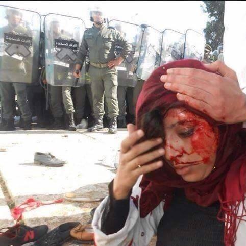 يتيم: التدخل الأمني العنيف ضد الأساتذة غير مبرر ومرفوض ومسيء الى سمعة المغرب الحقوقية