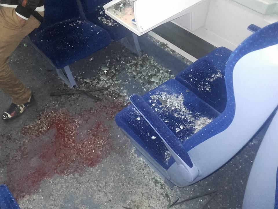 خطير.. إنفجار زجاج إحدى قطارات الخليع بسبب الظغط الناجم عن تقابل قطارين يخلف عدة جرحى (صور)