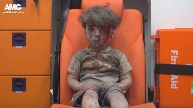 """صورة الطفل """"عمران"""" في حلب تصدم العالم"""