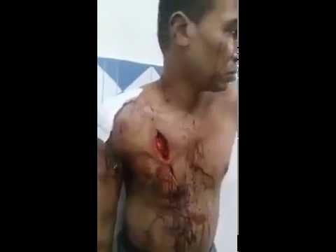 كاميرا تفضح كارثة مستشفى مغربي وغياب طبيب المستعجلات