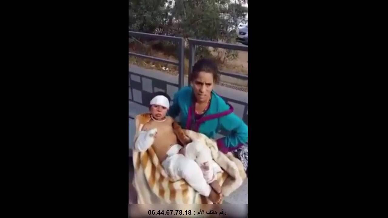 """صرخة طفل محروق بعد طرده من مستشفى """"موريزكو"""" بالدار البيضاء"""