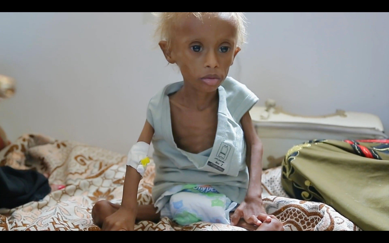 الفيلم الوثائقي اليمن: أطفال الجوع