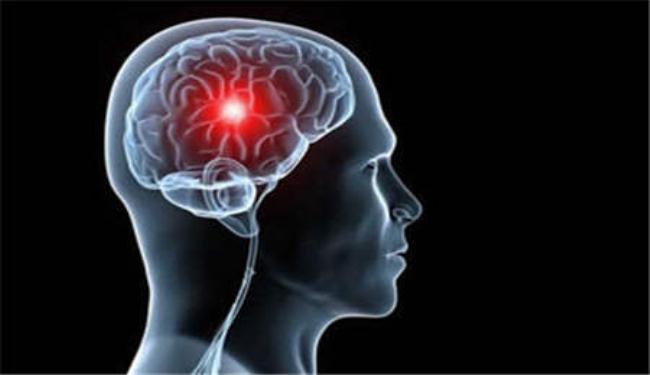 إنجاز طبي جديد على الصعيد الوطني لعلاج الجلطات الدماغية