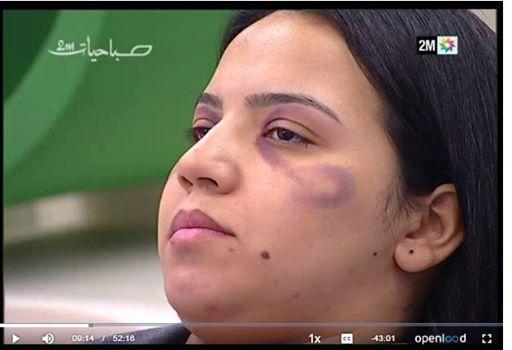 فضيحة قناة دوزيم في الماكياج والعنف
